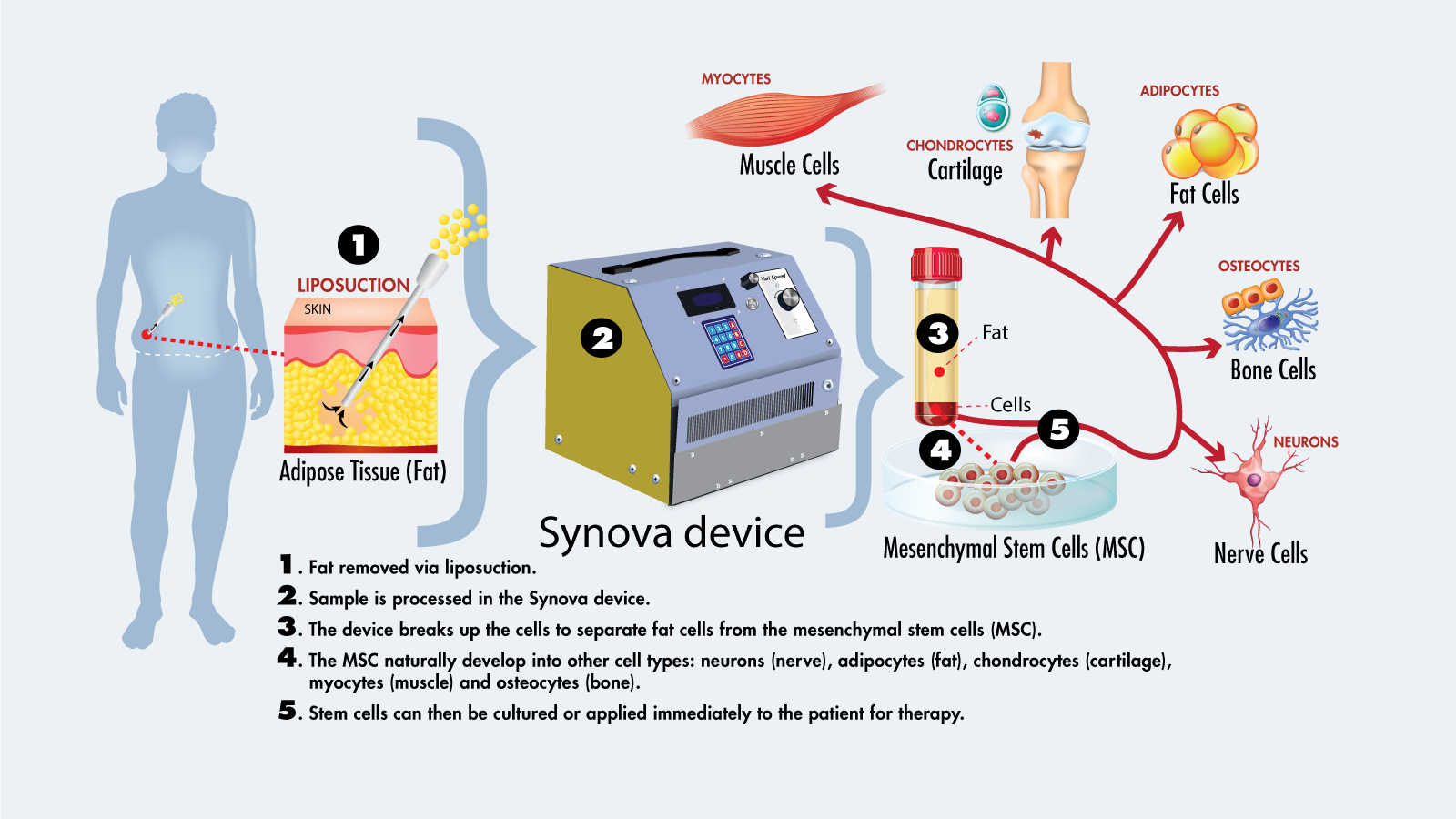 A diagram showcasing how the Synova device works to produce stem cells from fat.